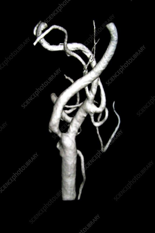 3D Angiogram of Carotid Stenosis