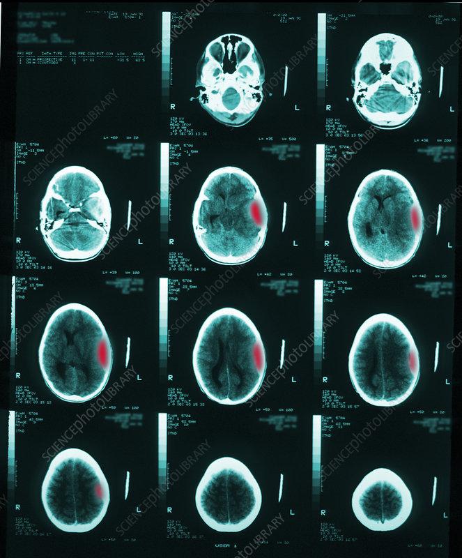 Cerebral CT showing subdural haematoma