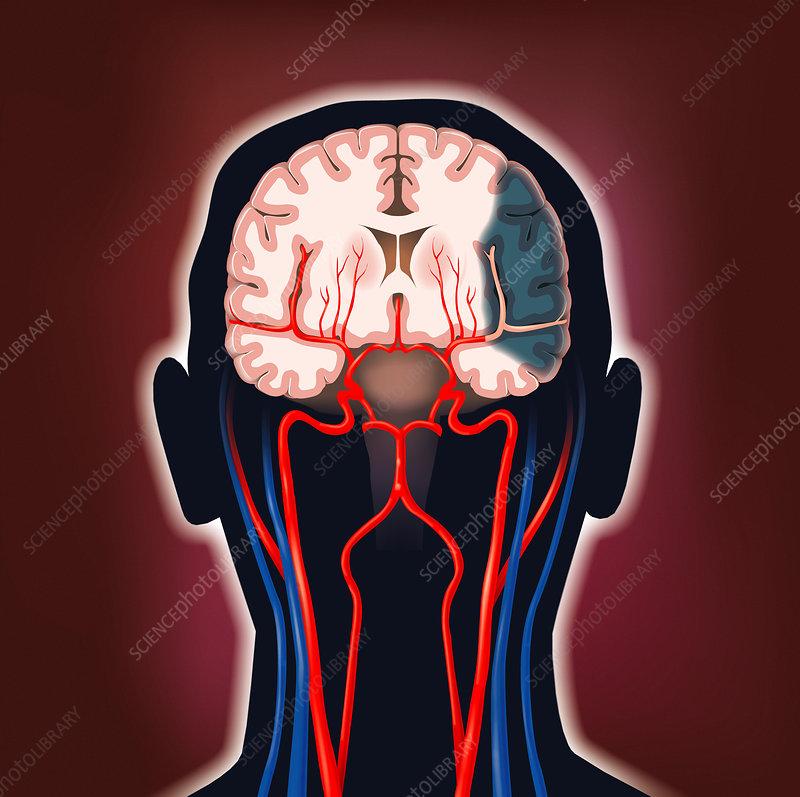 Brain tissue death due to stroke