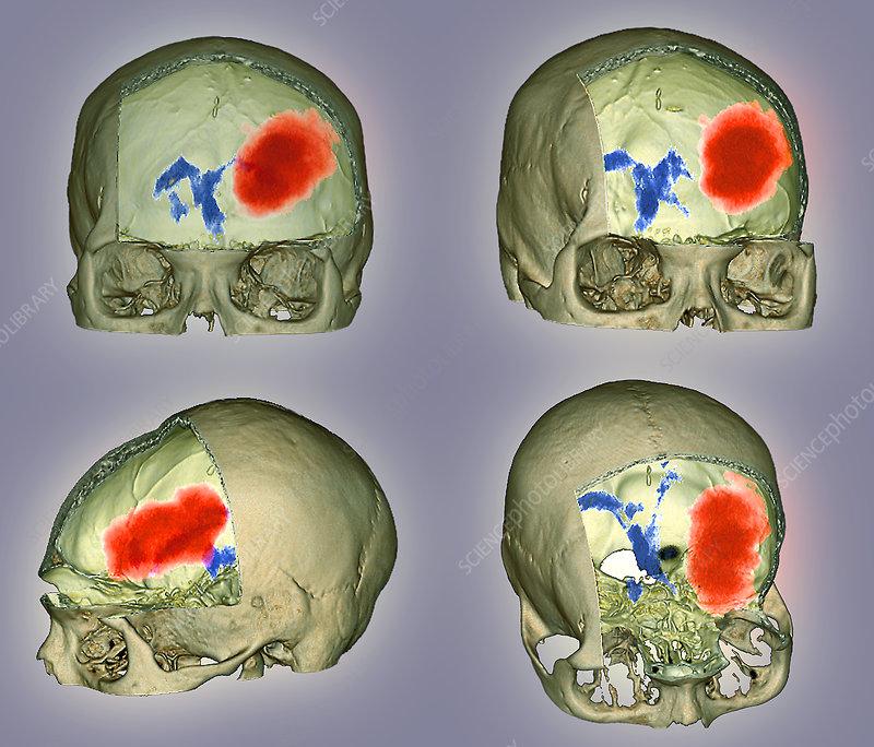 Brain haemorrhage, CT scans