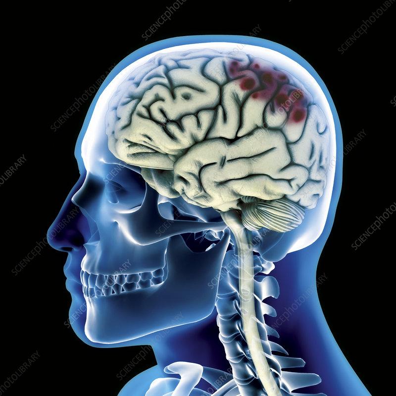 Head injury, computer artwork
