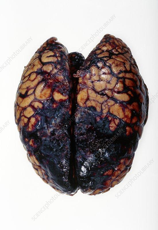 Brain haemorrhage, post-mortem