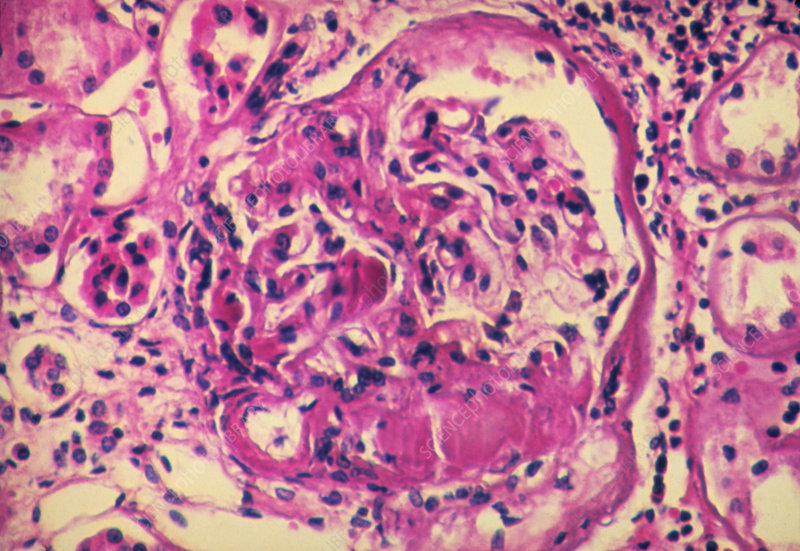 LM of glomerulus in diabetic kidney
