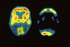 Brain images, one normal, one of dementia sufferer