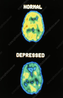 Depression: 2 axial PET scans of the brain