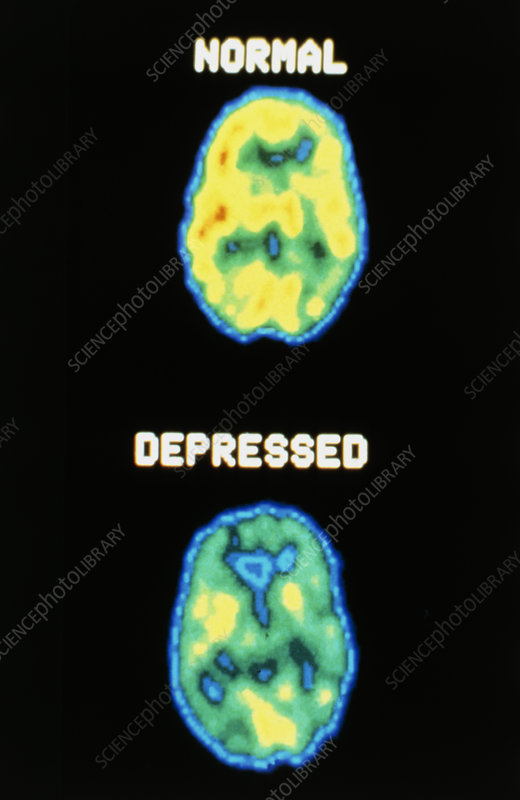 Depression: 2 axial PET scans of the brain - Stock Image ...