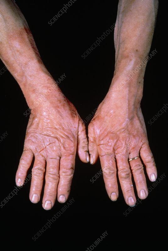 Dermatitis of hands