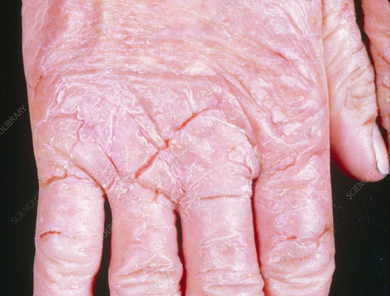 Dermatitis of the hand from rubber gloves