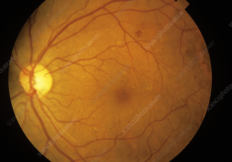 Fundus camera image: diabetic retinopathy