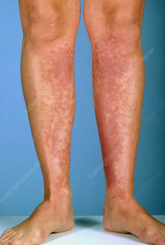 Contact dermatitis to shins due to shaving foam