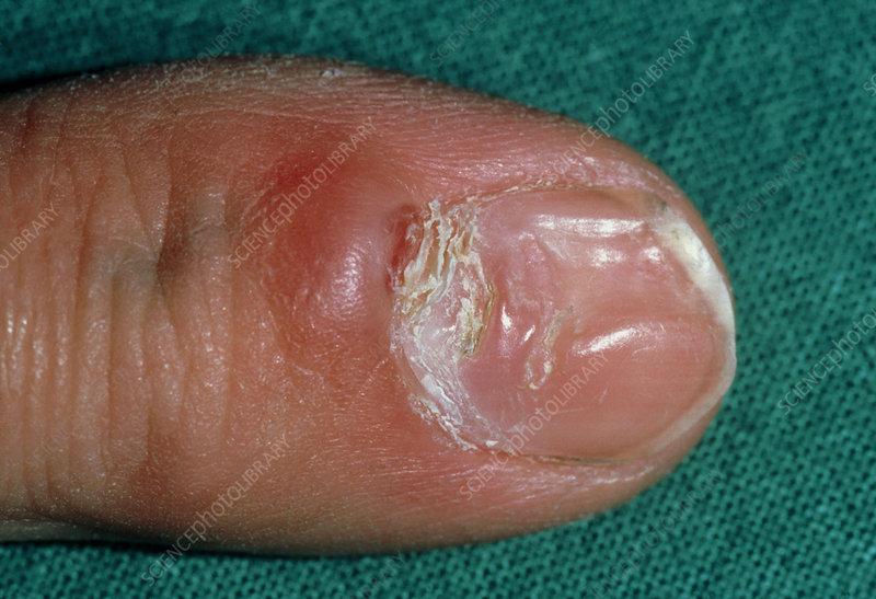 Dystrophic fingernail