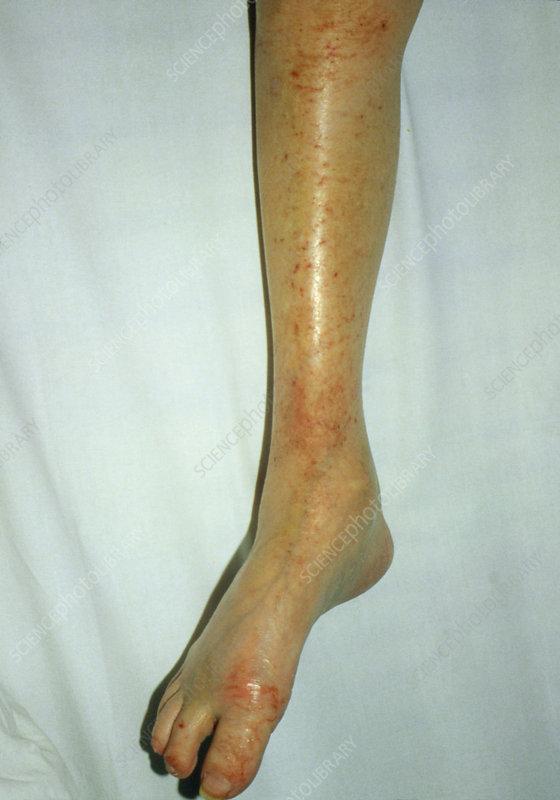 Leg affected by dermatitis herpetiformis