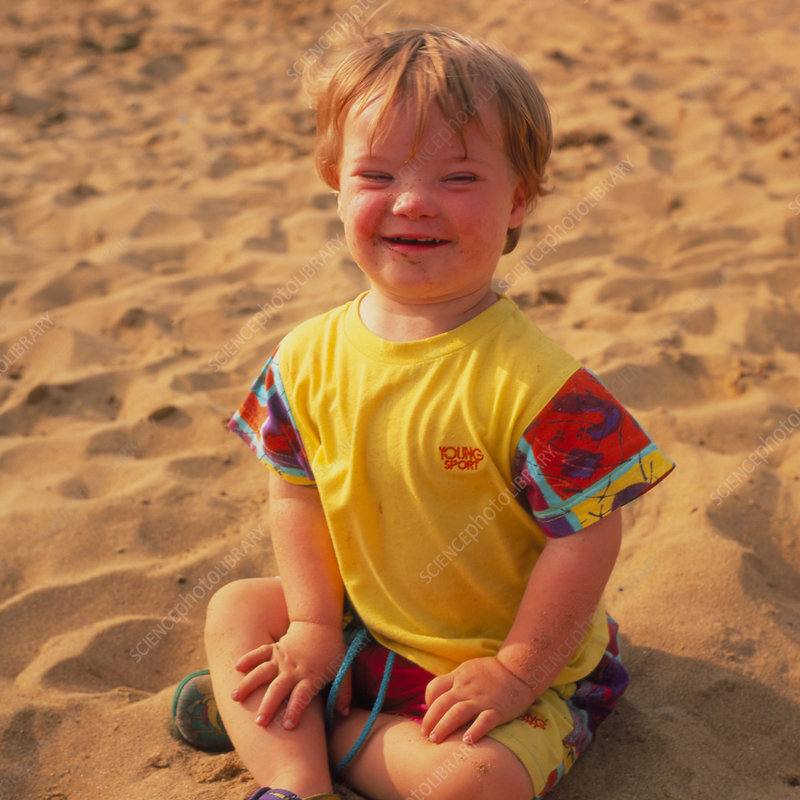 A child affected by Down's syndrome