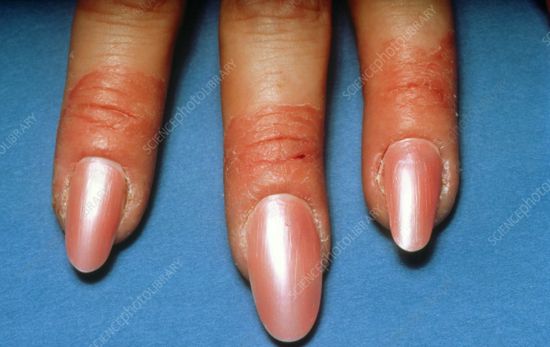 Contact dermatitis of the fingers