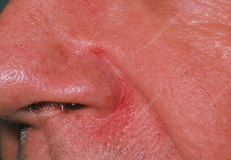 Patient with seborrhoeic dermatitis