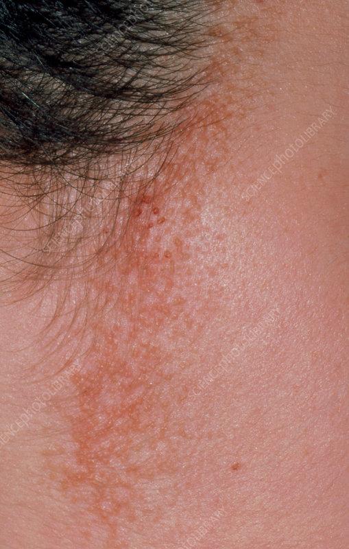 Seborrhoeic dermatitis around hairline