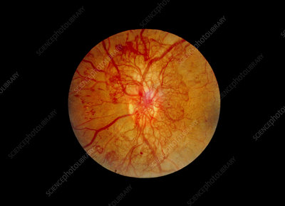 Ophthalmoscopy of eye with diabetic retinopathy
