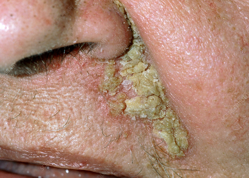Close-up of seborrhoeic dermatitis on face