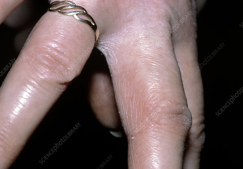 Dermatitis of hands caused by washing up liquid