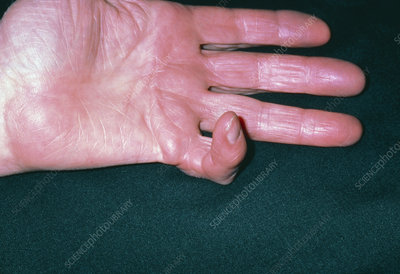 Dupuytrens contracture of little finger