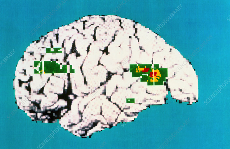 Coloured PET scan of brain showing depression