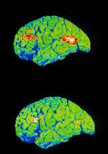 PET scan of depressed and normal brain