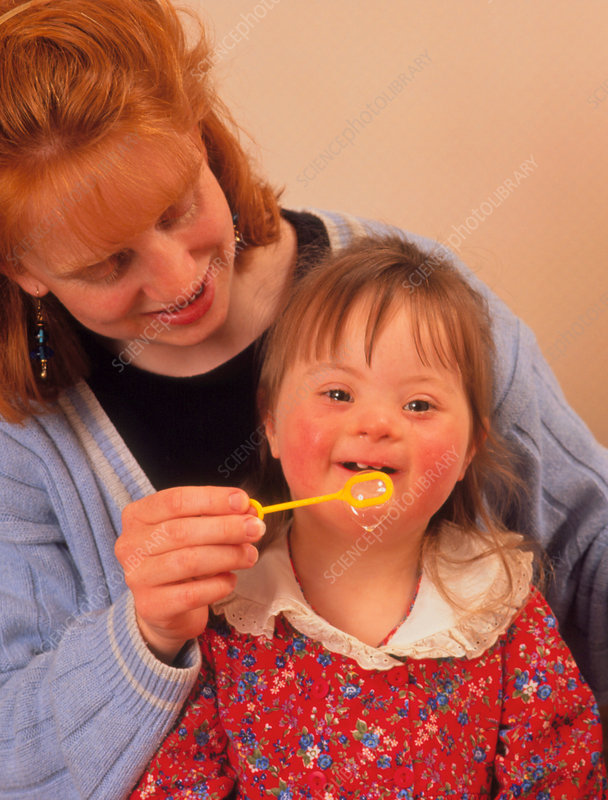 3-year-old girl with Down's syndrome with bubbles