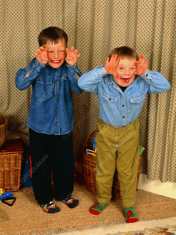 7-year-old boy with Down's syndrome with brother