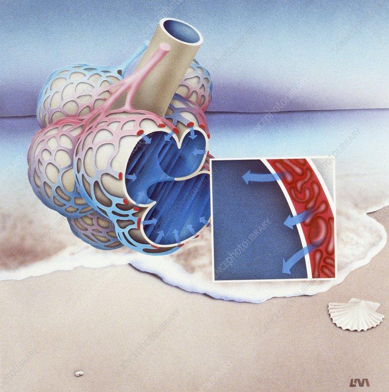 Artwork of alveoli in saltwater drowning