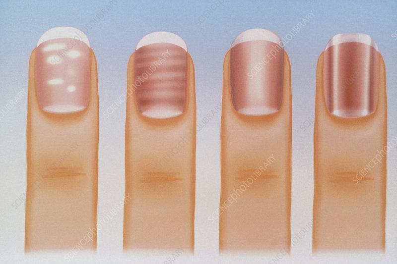 Artwork showing various fingernail disorders