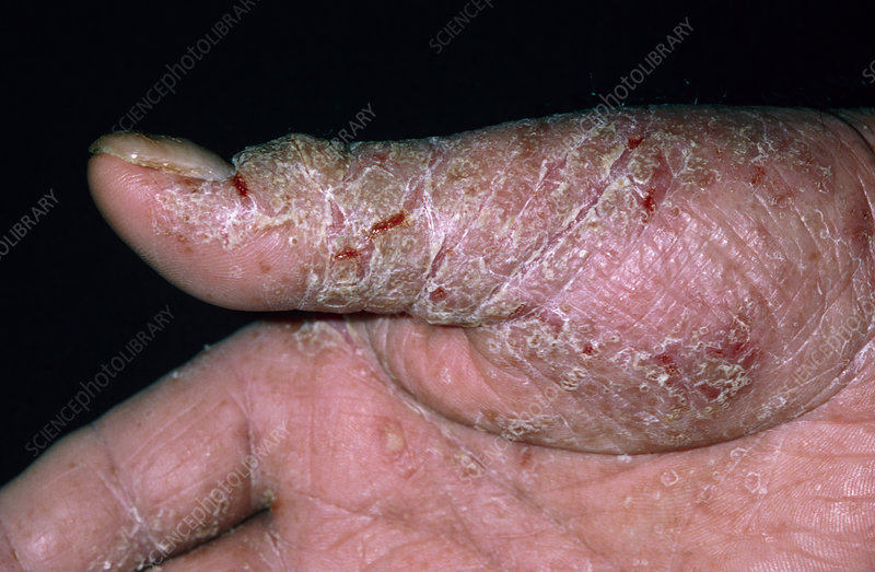 Man's thumb with contact dermatitis from rubber