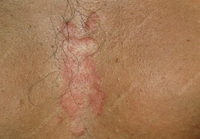 Close-up of seborrhoeic dermatitis on the chest