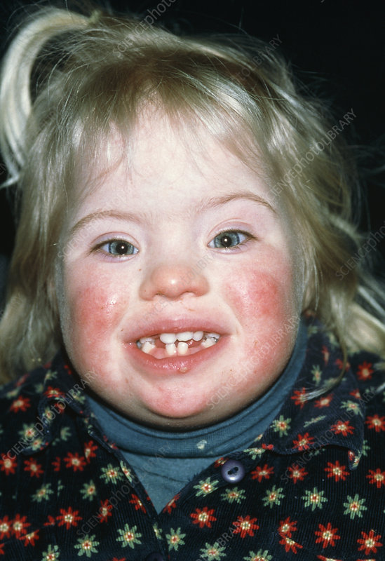 Two year old girl affected by Down's syndrome