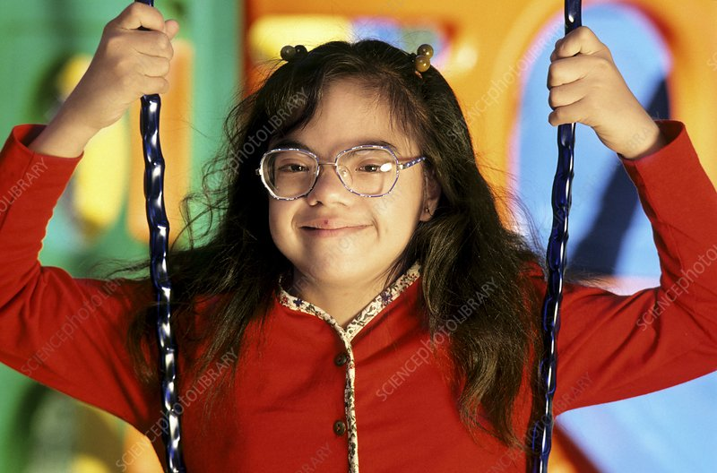 Girl with Down's syndrome sitting on a swing