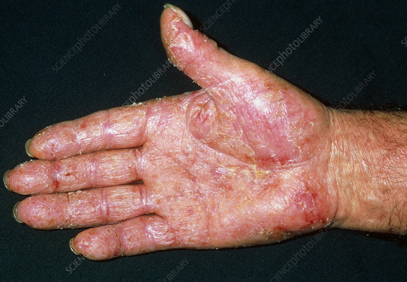 Contact+dermatitis+symptoms+pictures