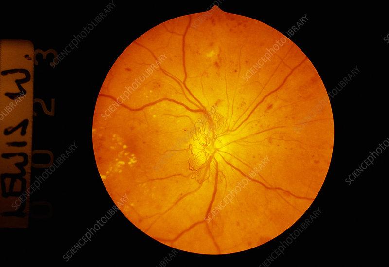 Retina damage in diabetes