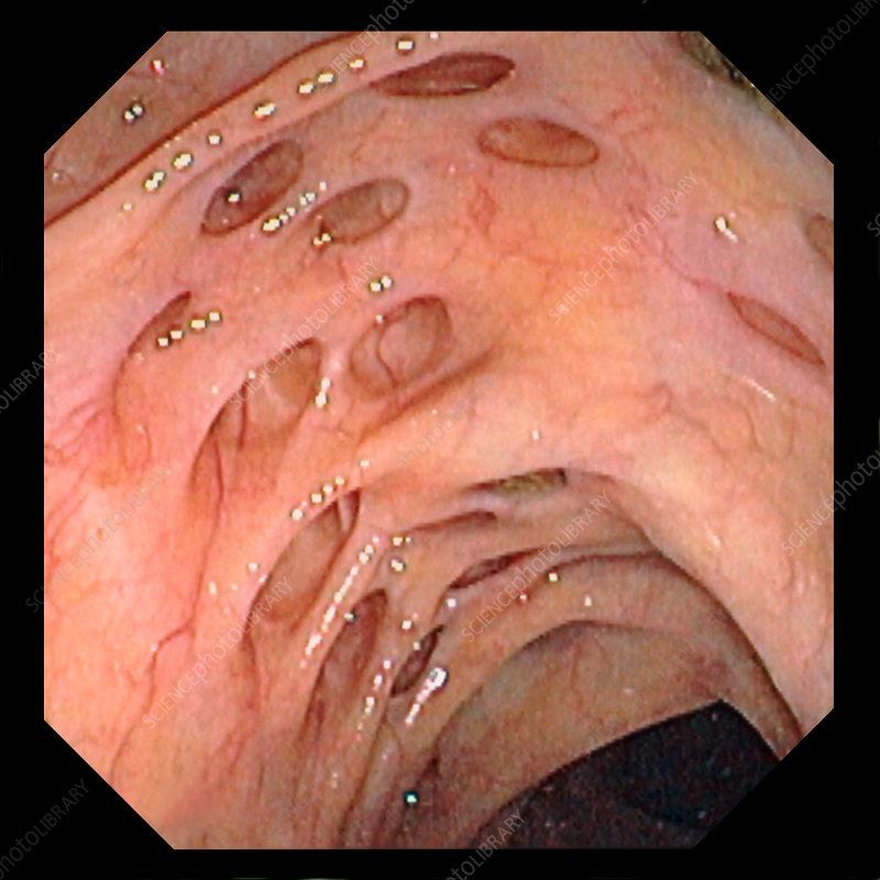 Colon diverticulosis