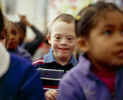 Down's syndrome boy