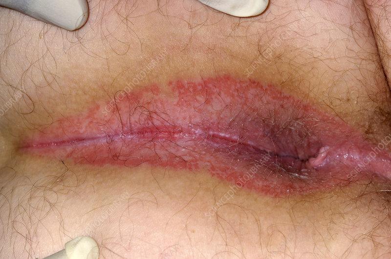 Dermatitis anal