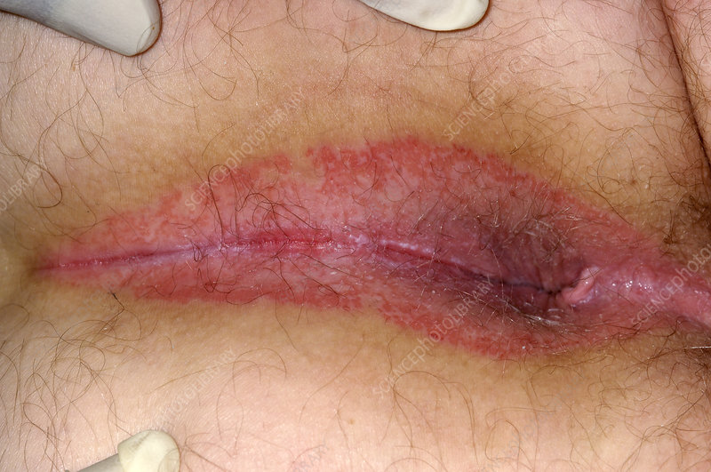 Longest anal dildo penetration