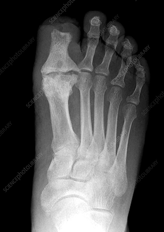 feet case study Case study #2: 2nd metatarso-phalangeal joint arthritis - joint implant this 48 year old female presented to our office with a complaint of pain in the 2nd mpj, right forefoot.