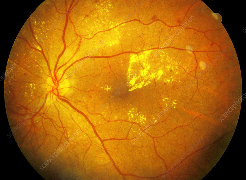Retina damage from diabetes