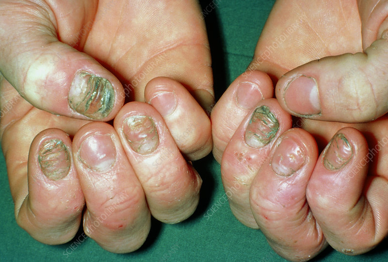 Eczema affecting the fingernails