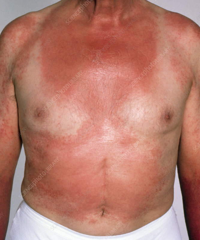 Elderly man suffering from photosensitive eczema