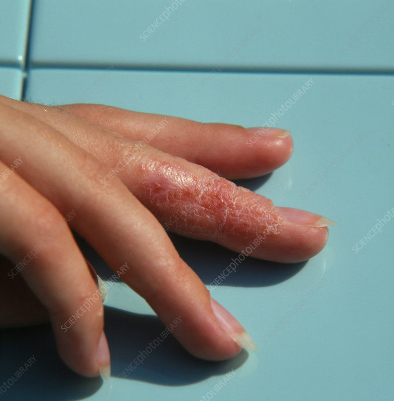 Eczema affecting a womans's finger