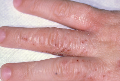 what causes severe eczema in adults