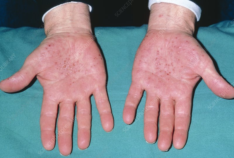 Discoid eczema: close-up of patient's hands