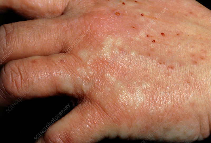 Pompholyx (eczema) of hands with urticaria - Stock Image