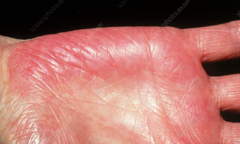 Close-up of liver palms (erythema) in an adult
