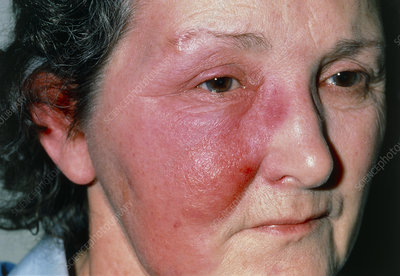 View of reddening due to erysipelas on womans face